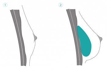Brustvergrößerung über dem Muskel