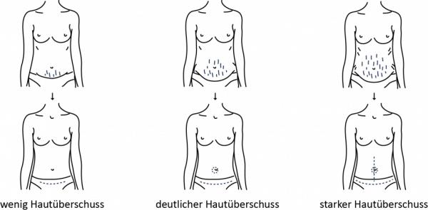 Bauchdeckenstraffung Vorgehensweise bei einer Frau