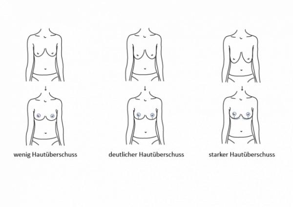 Möglichkeiten einer Bruststraffung in der Esthetic am Kurfürstendamm